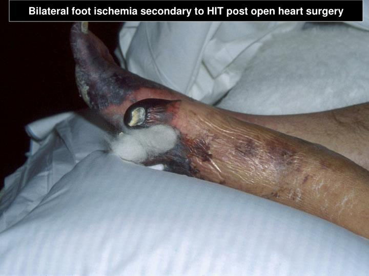 Bilateral foot ischemia secondary to HIT post open heart surgery