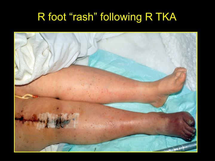 "R foot ""rash"" following R TKA"
