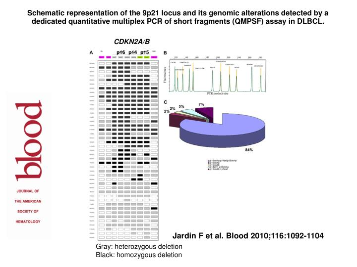 Schematic representation of the 9p21 locus and its genomic alterations detected by a dedicated quantitative multiplex PCR of short fragments (QMPSF) assay in DLBCL.