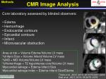 cmr image analysis
