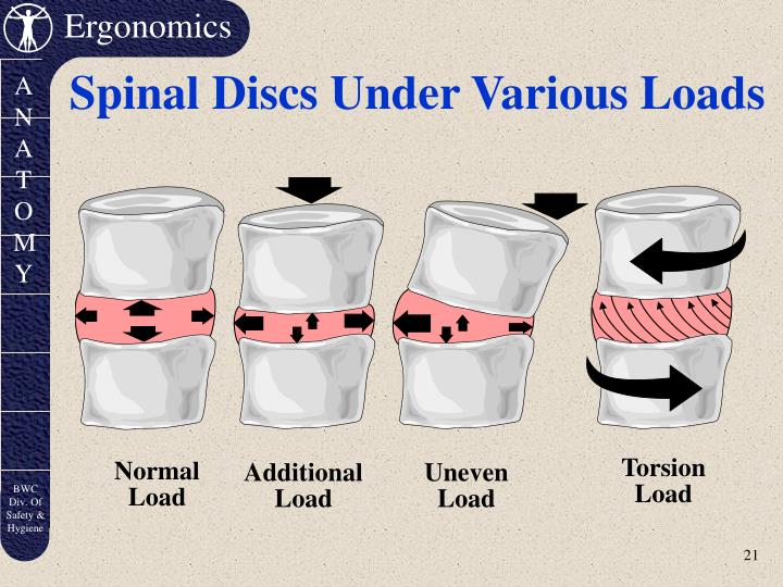 Spinal Discs Under Various Loads