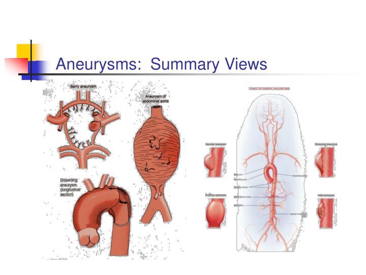 Aneurysms:  Summary Views
