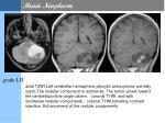 brain neoplasm6