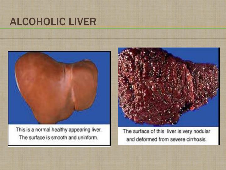 Alcoholic Liver