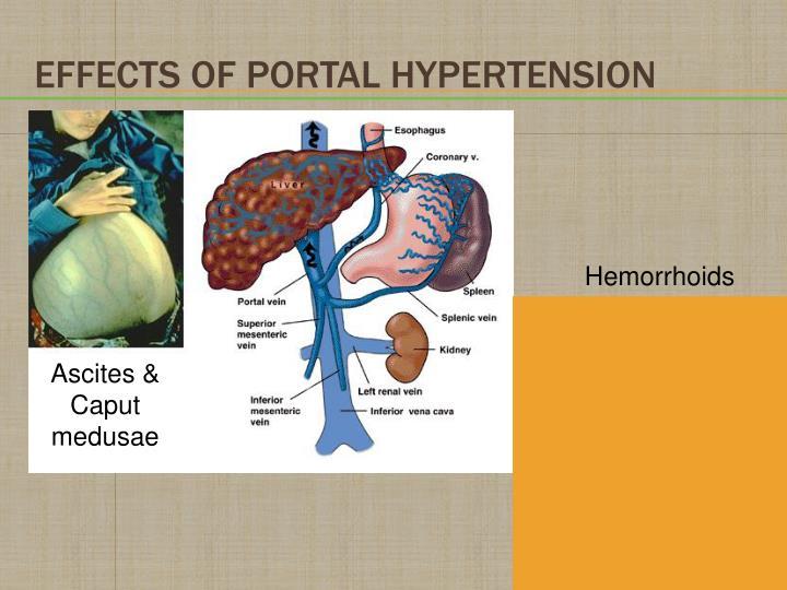 Effects of Portal Hypertension
