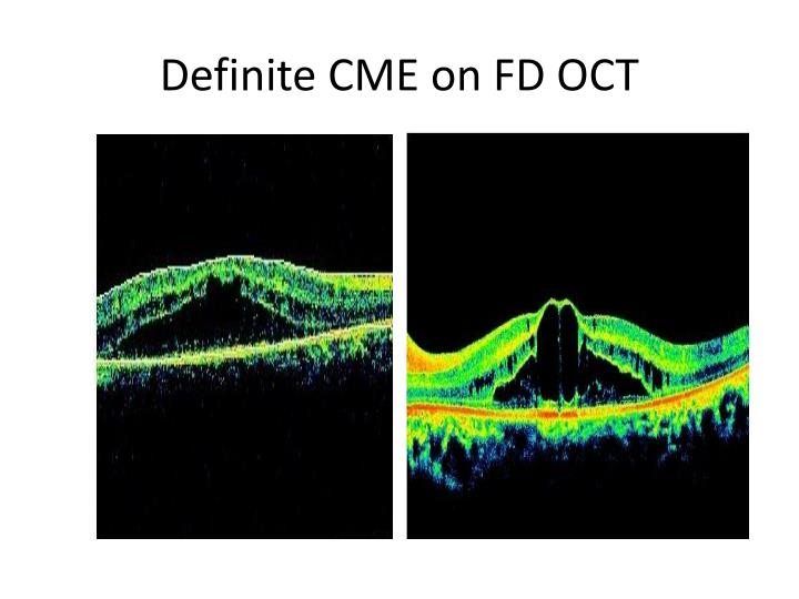 Definite CME on FD OCT
