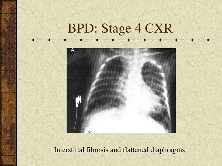 BPD: Stage 4 CXR