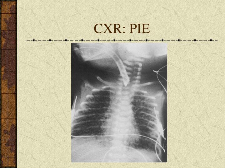 CXR: PIE