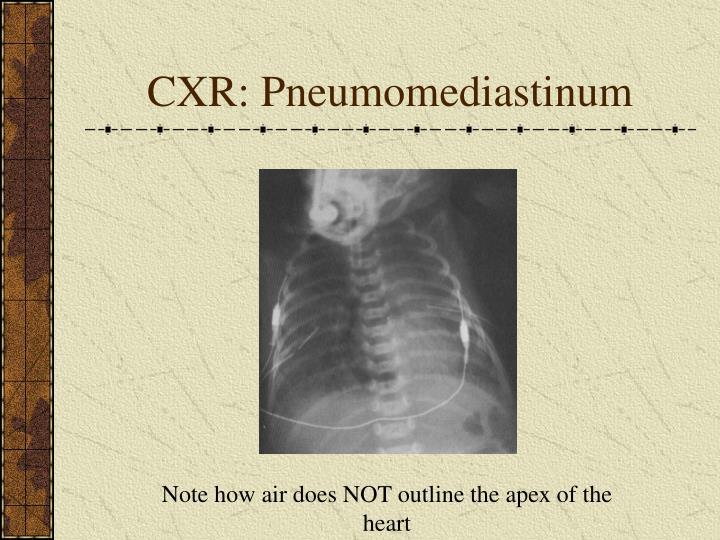 CXR: Pneumomediastinum