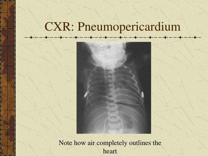 CXR: Pneumopericardium