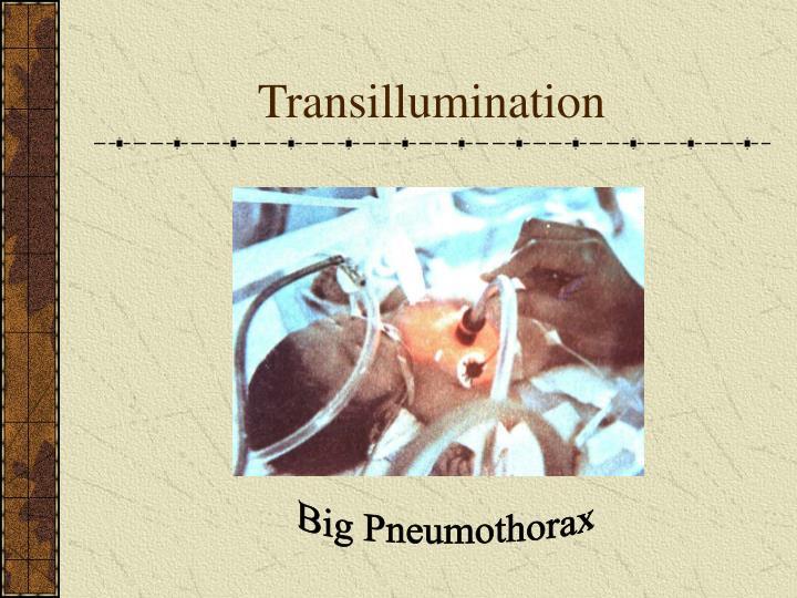 Transillumination