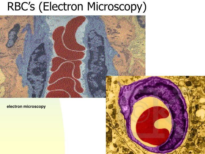 RBC's (Electron Microscopy)