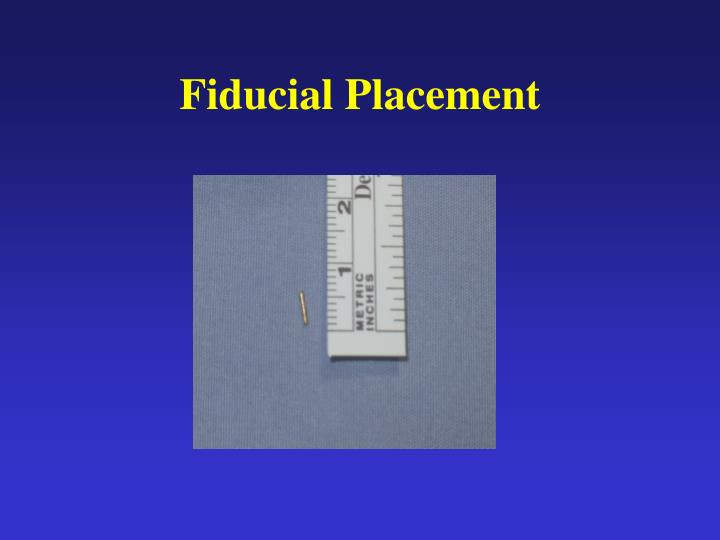 Fiducial Placement