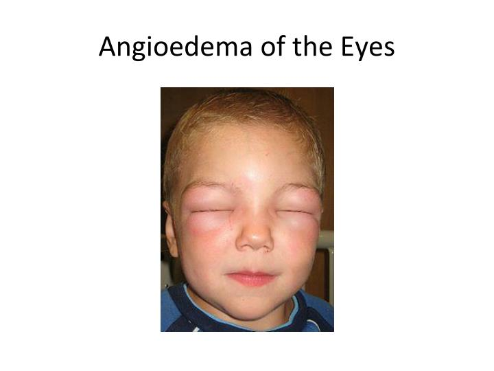 Angioedema of the Eyes