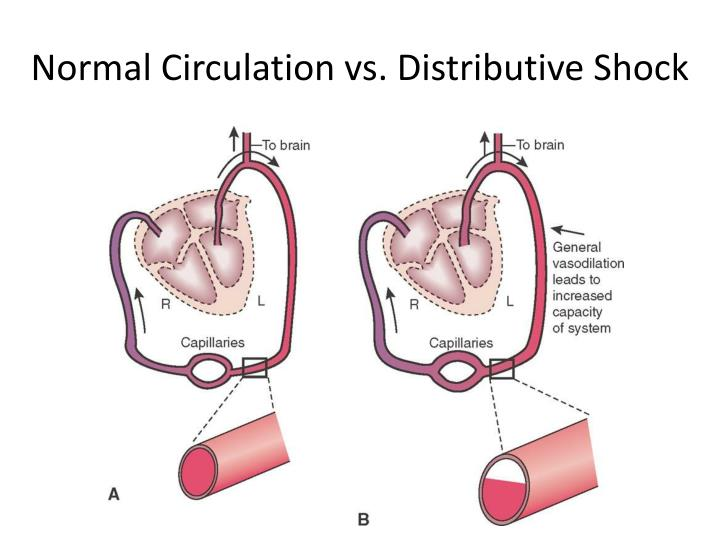 Normal Circulation vs. Distributive Shock