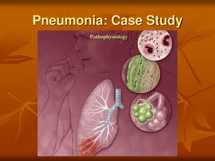 Pneumonia: Case Study