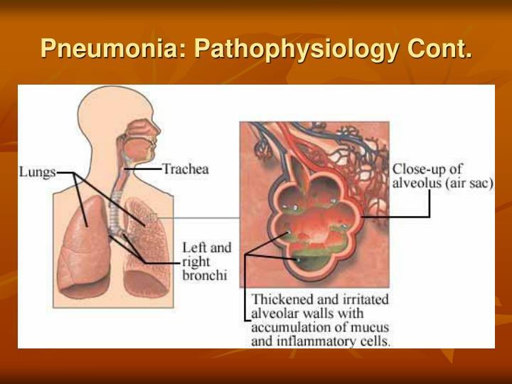 Pneumonia: Pathophysiology Cont.