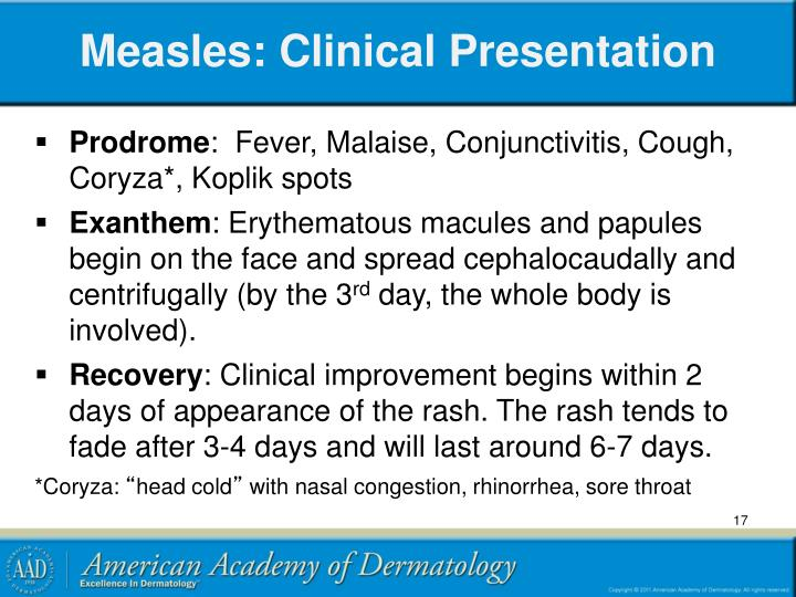 Measles: Clinical Presentation