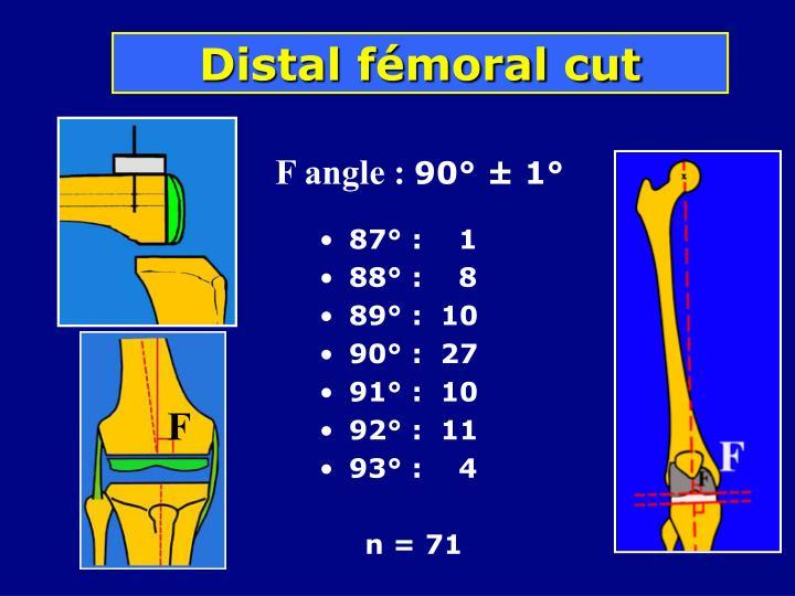 Distal fémoral cut