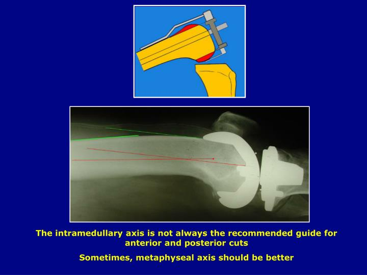 The intramedullary axis is not always the recommended guide for anterior and posterior cuts
