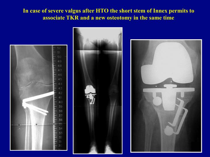 In case of severe valgus after HTO the short stem of Innex permits to associate TKR and a new osteotomy in the same time
