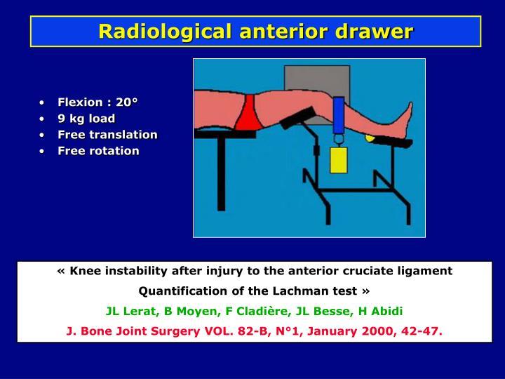 Radiological anterior drawer