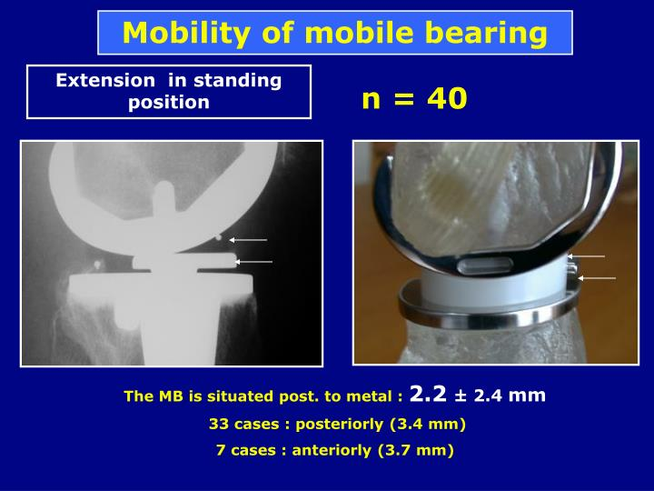 Mobility of mobile bearing