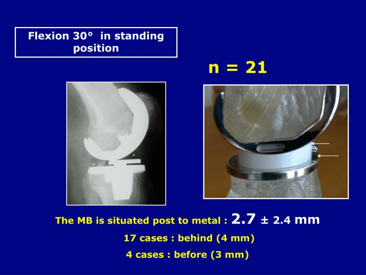 Flexion 30°  in standing position
