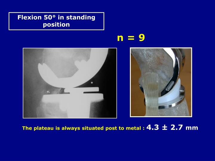 Flexion 50° in standing position