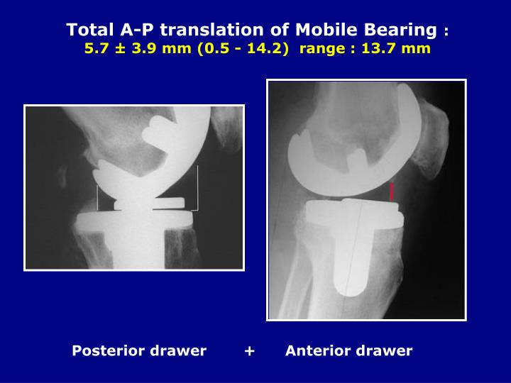 Total A-P translation of Mobile Bearing