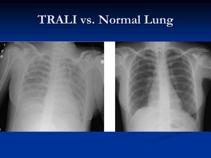 TRALI vs. Normal Lung