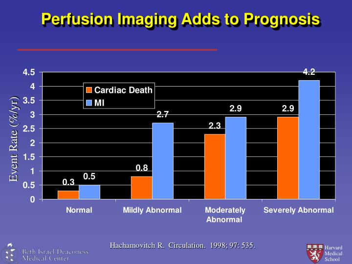 Perfusion Imaging Adds to Prognosis
