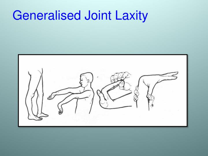 Generalised Joint Laxity