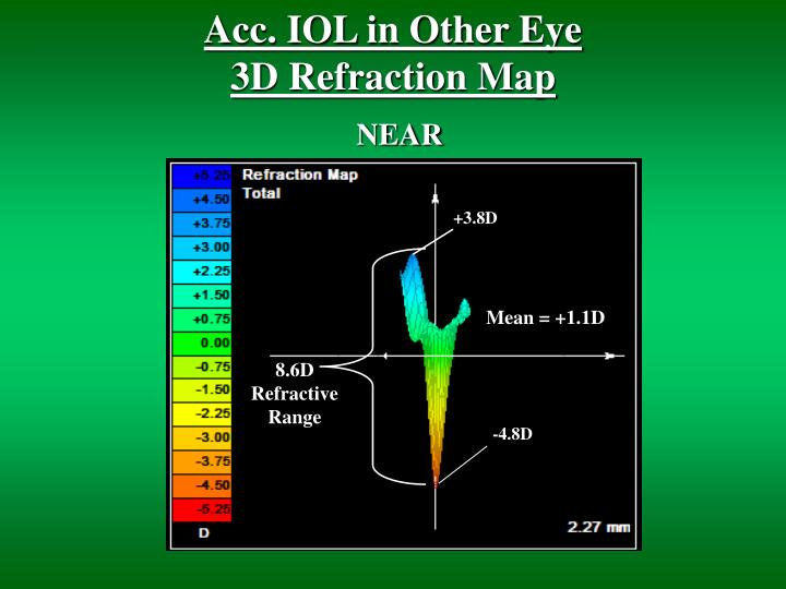 Acc. IOL in Other Eye