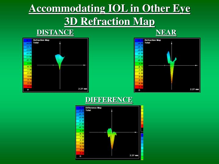 Accommodating IOL in Other Eye