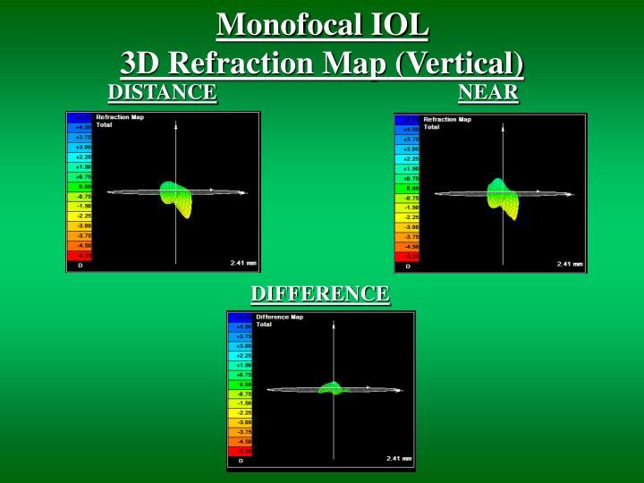 Monofocal IOL