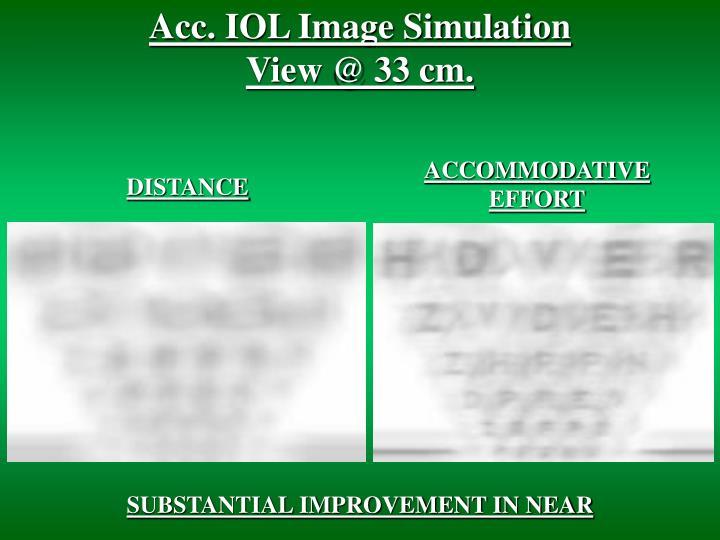 Acc. IOL Image Simulation