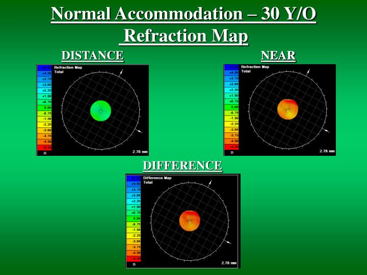 Normal Accommodation – 30 Y/O