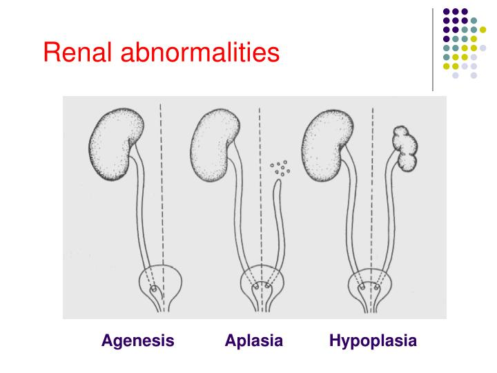 Renal abnormalities