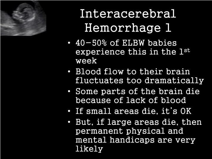Interacerebral