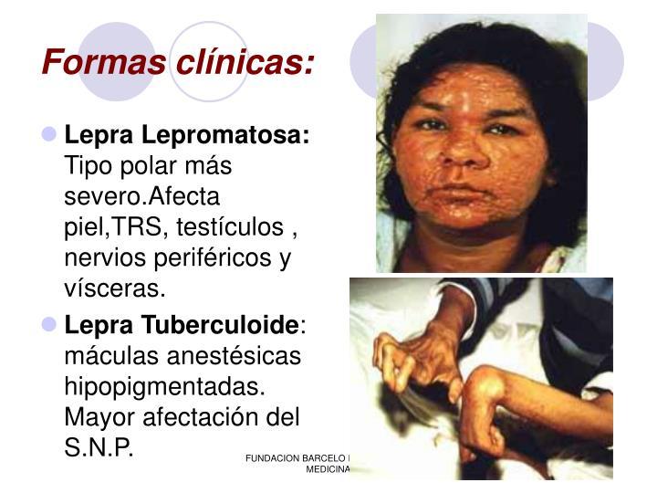 Formas clínicas: