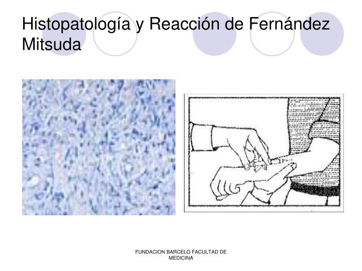 Histopatología y Reacción de Fernández Mitsuda