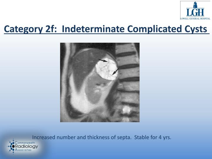 Category 2f:  Indeterminate Complicated Cysts