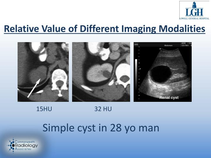 Relative Value of Different Imaging Modalities