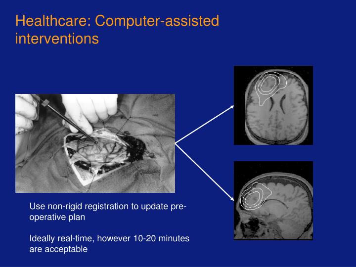 Healthcare: Computer-assisted interventions