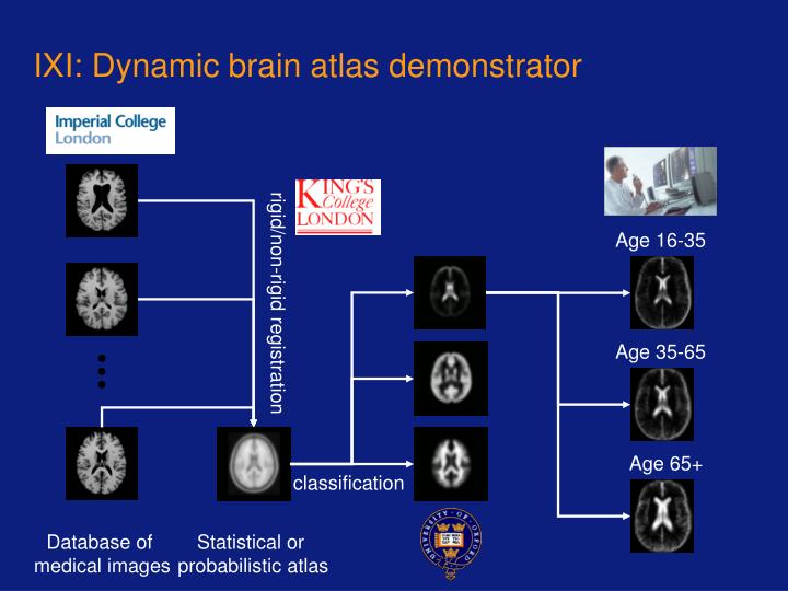 IXI: Dynamic brain atlas demonstrator