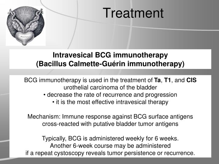 Intravesical BCG immunotherapy