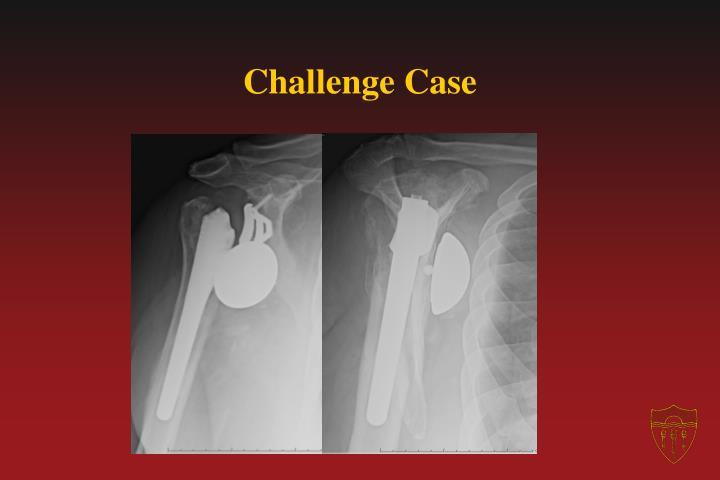 Challenge Case