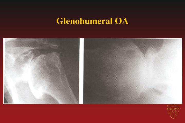 Glenohumeral OA