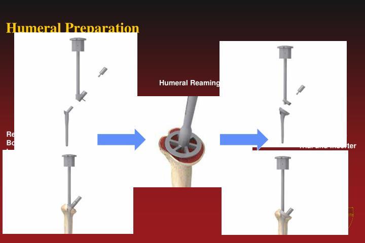 Humeral Preparation